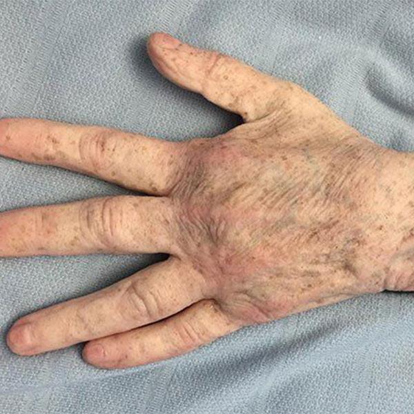 Lifecast Seniors simulation manikins
